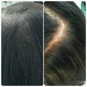 Example of how scalp micropigmentation can be used to help women by Better Hair Transplant Clinics