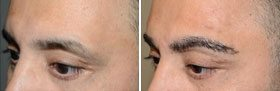 Example of an eyebrow transplant carried out on a man by Better Hair Transplant Clinics