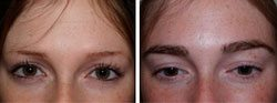 Example of an eyebrow transplant carried out on a woman by Better Hair Transplant Clinics