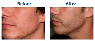 Example of a beard hair transplant carried out by Better Hair Transplant Clinics
