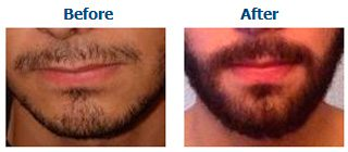 Example of a facial hair transplant carried out by Better Hair Transplant Clinics